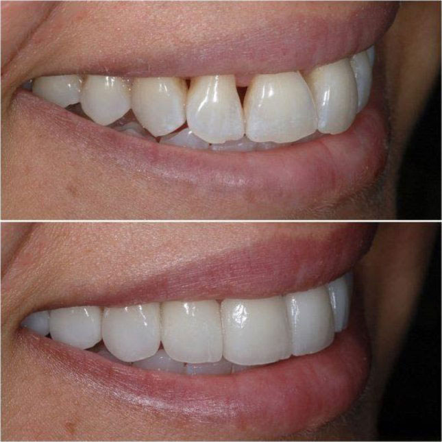 Veneers Before and After 1