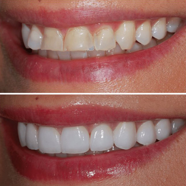 Veneers Before and After 2