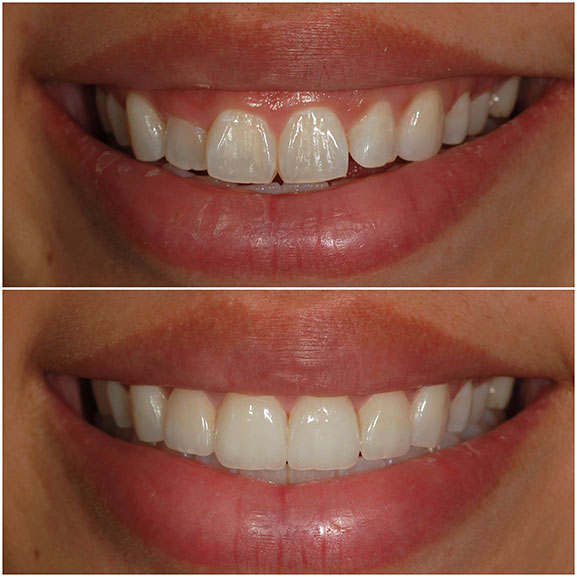Veneers Before and After Front 22