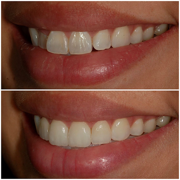 Veneers Before and After Left Oblique 22