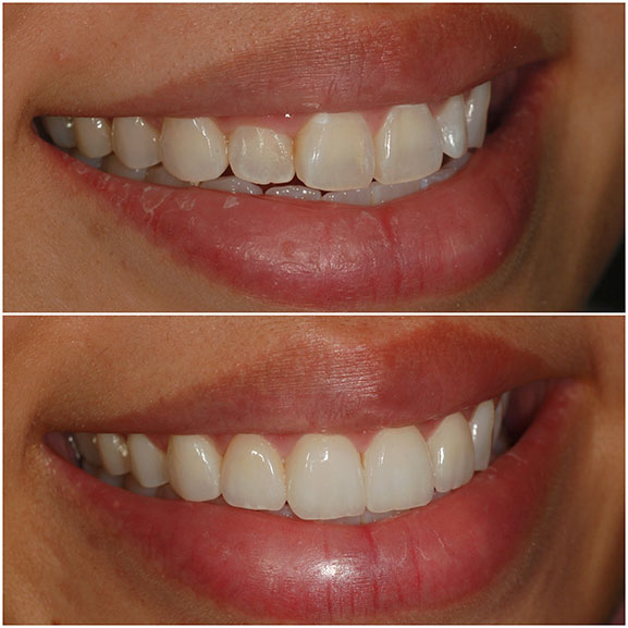 Veneers Before and After Right Oblique 22