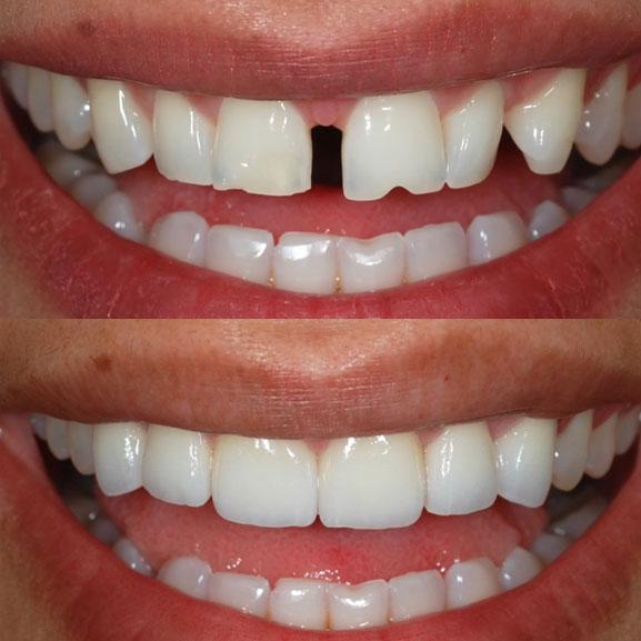 Orthodontics Procedure Case 14