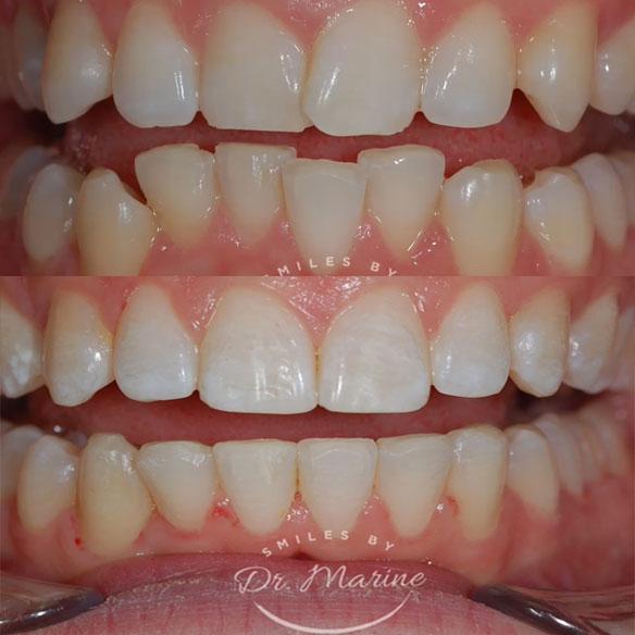 Orthodontics Procedure Case 15