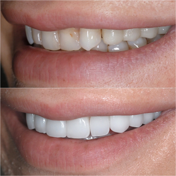 Veneers Before and After Case 1