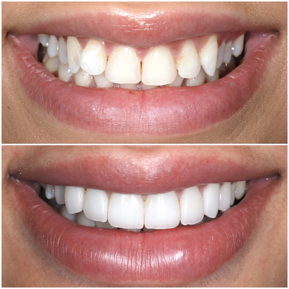 Veneers Before and After Case 2