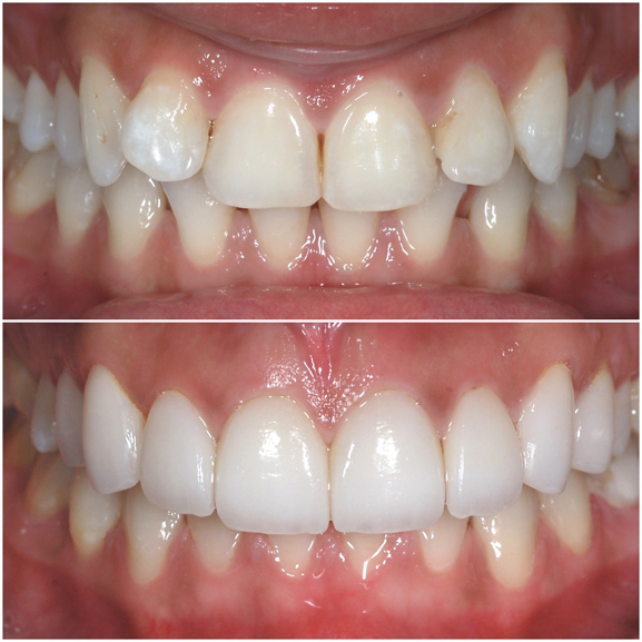 Veneers Before and After Case 3