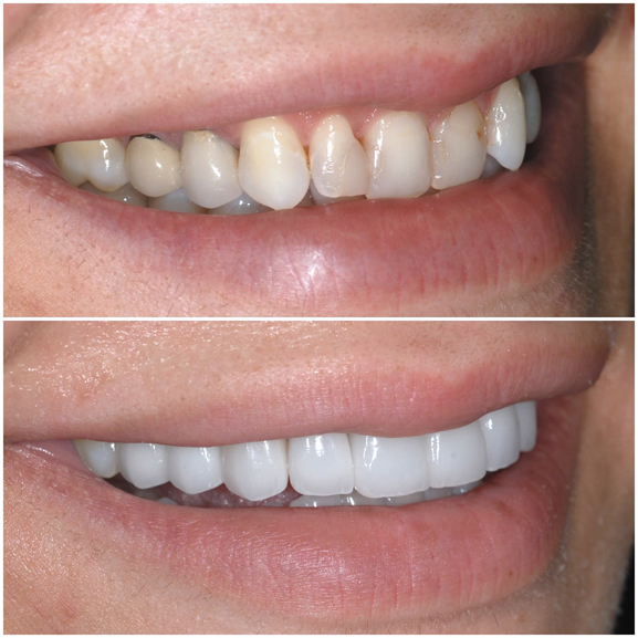 Veneers Before and After Case 4