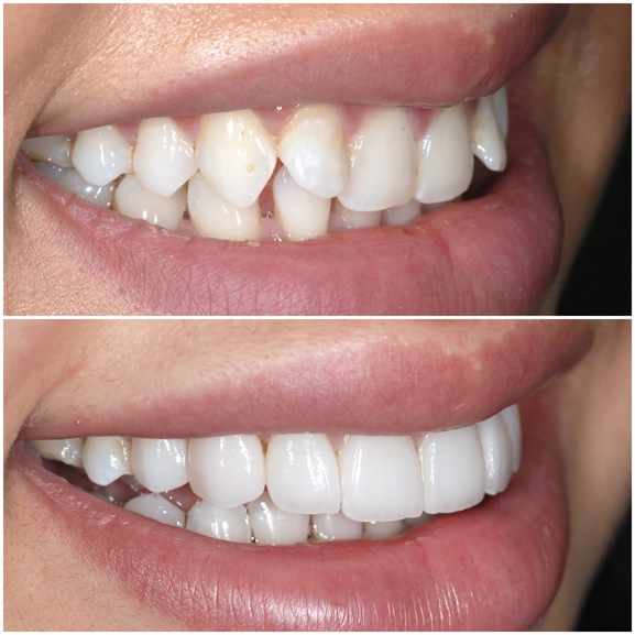Veneers Before and After Case 5