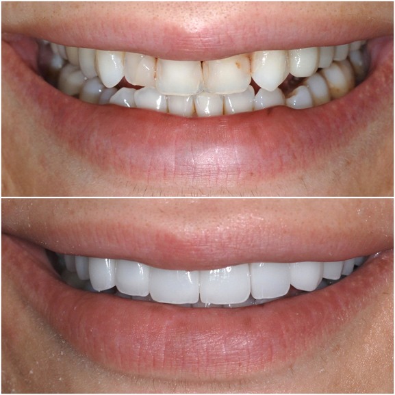 Veneers Before and After Case 6