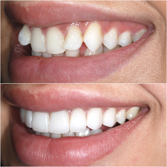 Veneers Before and After Case 7
